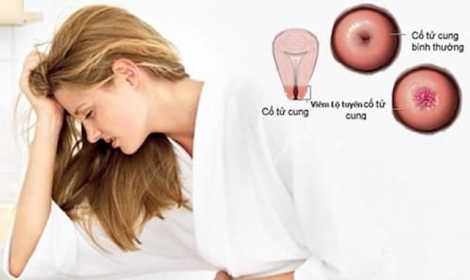 Viêm lộ tuyến cổ tử cung: Dấu hiệu, nguyên nhân, hình ảnh và cách điều trị